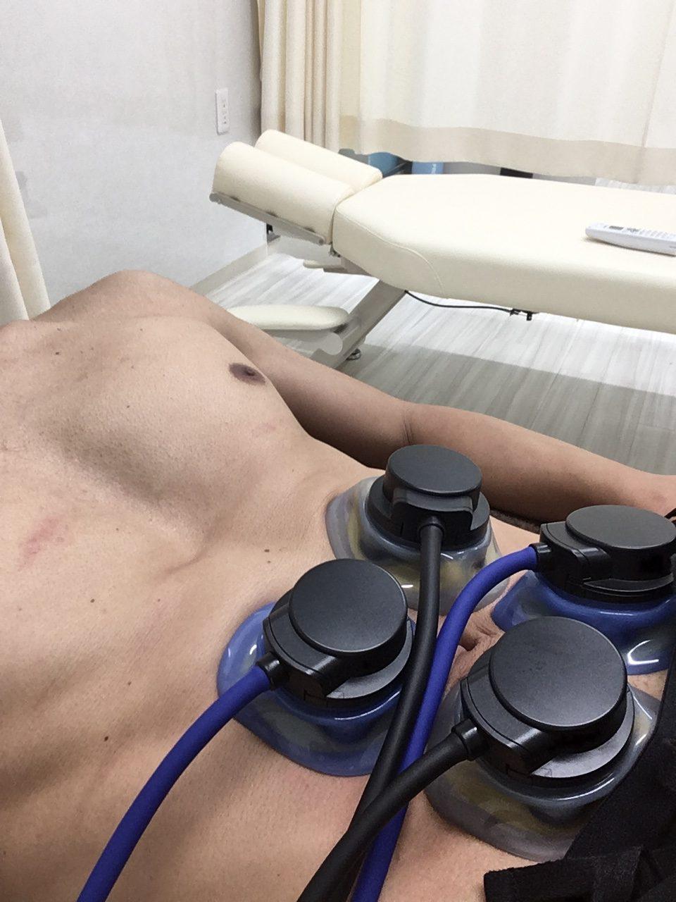 3D EMS体幹